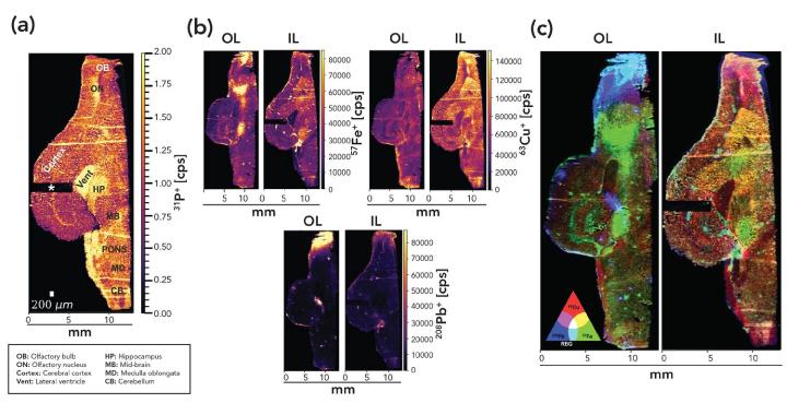 Рис. 2: Лазерная абляция МС-ИСП изображений осевого среза репрезентативных мозгов белок из Внутреннего (IL) и Внешнего (OL) Лондона с разрешением 40 мкм.